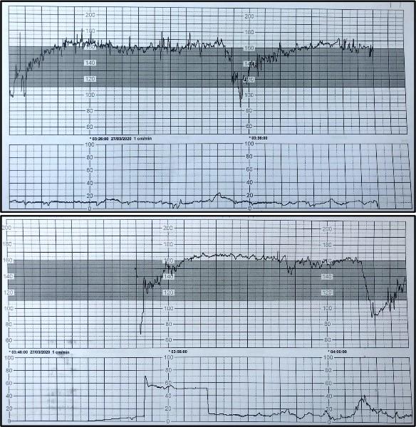 医生监测到III类胎心率 图片来源《自然—通讯》》.jpg
